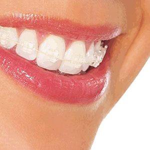 Diplomado en Prevención e Intercepción en Anomalías Dentomaxilofaciales - Talca-